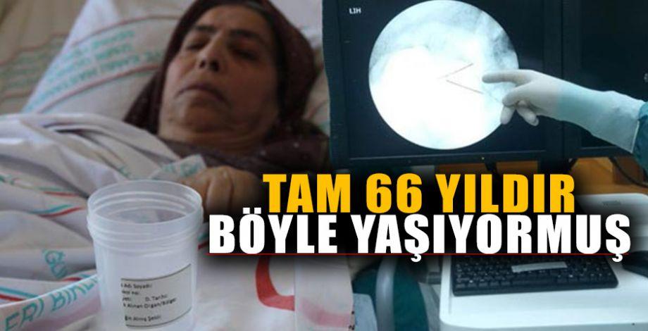 68 Yaşındaki kadının vücudundan çıkan şey doktorları şoke etti