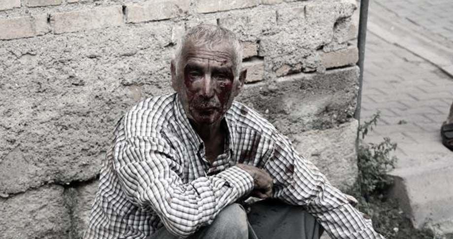 Adana'da dövülüp gasp edilen Urfalı işçiye Ekinci sahip çıktı