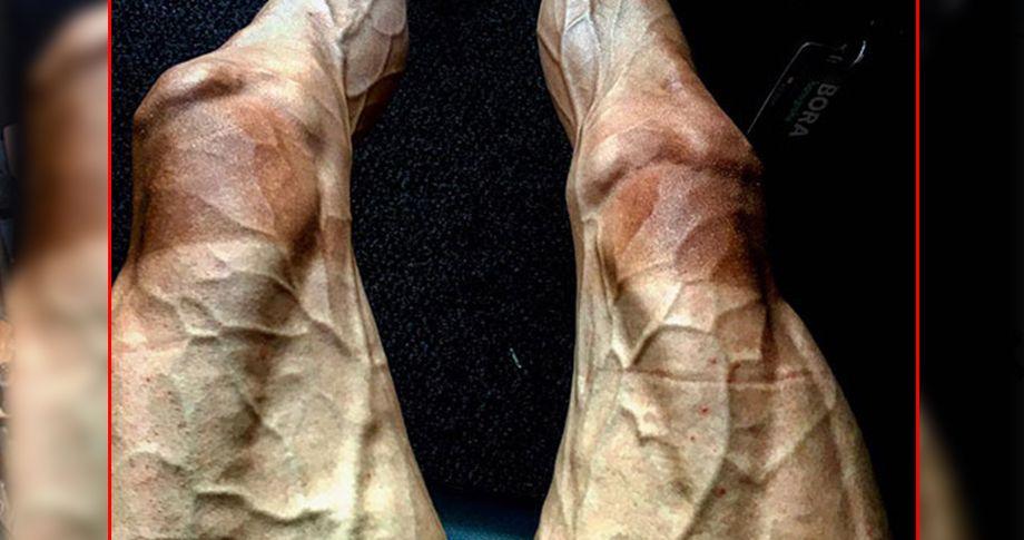 Bacakları bu hale geldi!