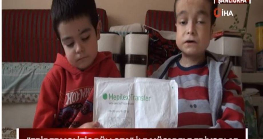 İki Kardeşin Durumu Yürek Burkuyor (videolu)
