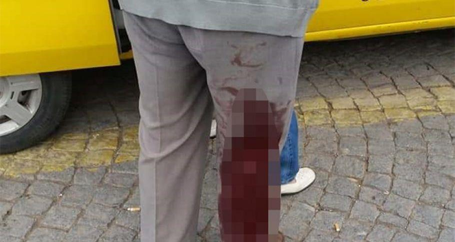Köpeklerin saldırdığı 2 kişi hastanelik oldu