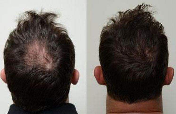 Saç Dökülmesi Sorun Olmaktan Çıktı