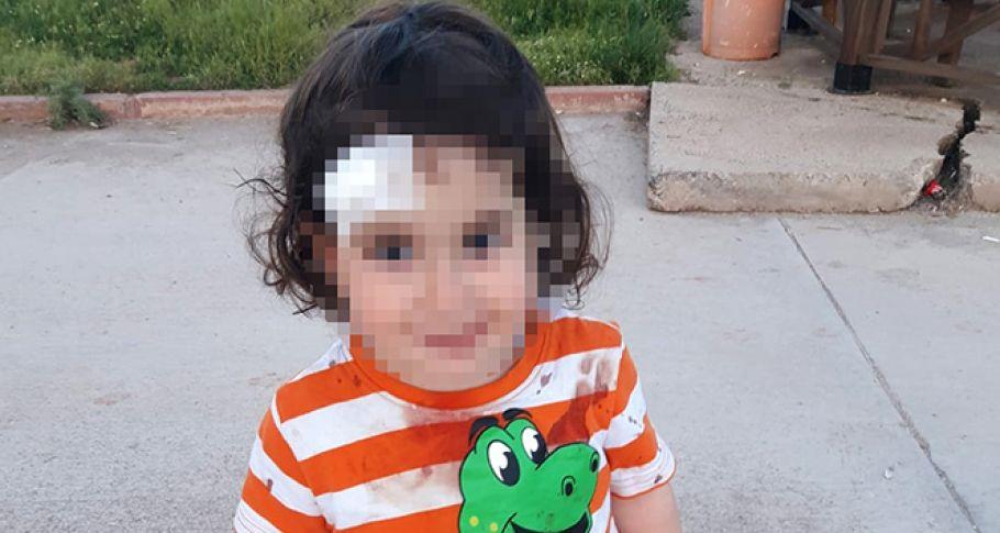 Sokak köpeği 1,5 yaşındaki çocuğa saldırdı